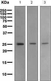 Western blot - Anti-BCAS2 antibody [EPR4375] (ab108330)