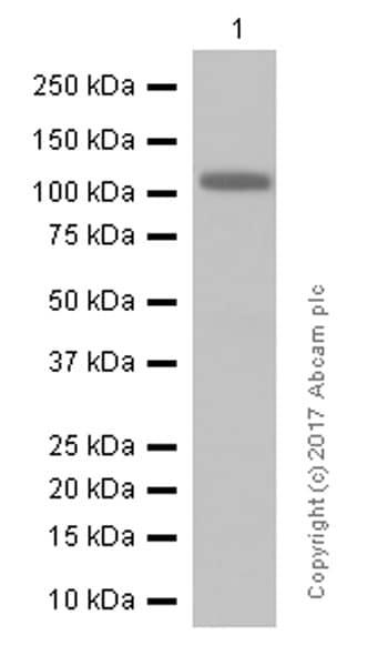 Western blot - Anti-Androgen Receptor antibody [ER179(2)] (ab108341)