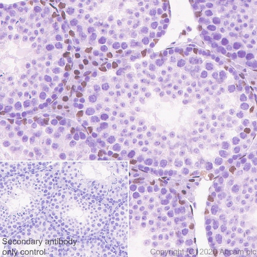Immunohistochemistry (Formalin/PFA-fixed paraffin-embedded sections) - Anti-Androgen Receptor antibody [ER179(2)] - ChIP Grade (ab108341)