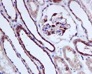 Immunohistochemistry (Formalin/PFA-fixed paraffin-embedded sections) - Anti-beta Tubulin antibody [EPR1330] (ab108342)