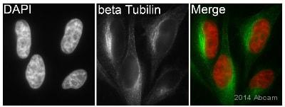Immunocytochemistry/ Immunofluorescence - Anti-beta Tubulin antibody [EPR1330] (ab108342)