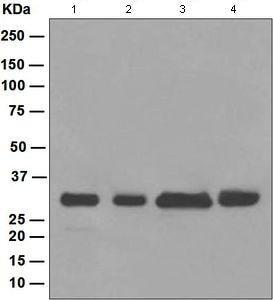 Western blot - Anti-BPR antibody [EPR5201] (ab108346)