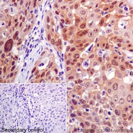 Immunohistochemistry (Formalin/PFA-fixed paraffin-embedded sections) - Anti-CDKN2A/p16INK4a antibody [EPR1473] - C-terminal (ab108349)