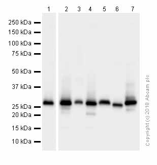 Western blot - Anti-Carbonic Anhydrase 1/CA1 antibody [EPR5193] (ab108367)