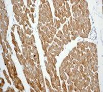 Immunohistochemistry (Formalin/PFA-fixed paraffin-embedded sections) - Anti-Calsequestrin 2 antibody [EPR4228] (ab108381)