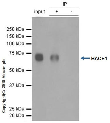 Immunoprecipitation - Anti-BACE1 antibody [EPR3956] (ab108394)