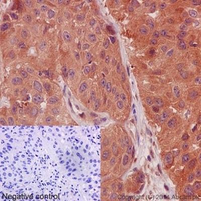 Immunohistochemistry (Formalin/PFA-fixed paraffin-embedded sections) - Anti-Calpain 1 antibody [EPR3319] (ab108400)