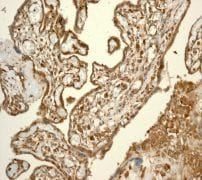 Immunohistochemistry (Formalin/PFA-fixed paraffin-embedded sections) - Anti-CSPS/STM antibody [EPR3720(2)] (ab108401)