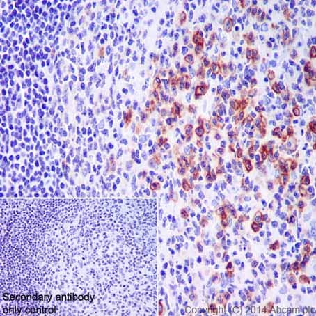 Immunohistochemistry (Formalin/PFA-fixed paraffin-embedded sections) - Anti-CD38 antibody [EPR4106] (ab108403)