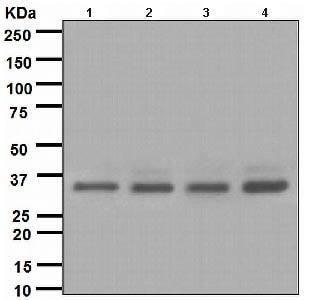 Western blot - Anti-BRCC36 antibody [EPR4366] (ab108411)