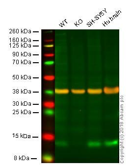 Western blot - Anti-FKBP12 antibody [EP3887] (ab108420)
