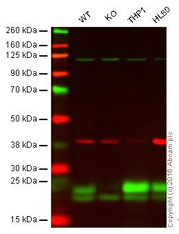 Western blot - Anti-Glutathione Peroxidase 1 antibody [EPR3312] (ab108427)