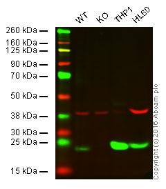 Western blot - Anti-Glutathione Peroxidase 1 antibody [EPR3311] (ab108429)