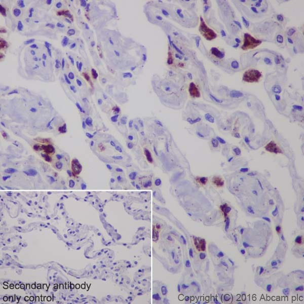 Immunohistochemistry (Formalin/PFA-fixed paraffin-embedded sections) - Anti-Lysozyme antibody [EPR2994(2)] (ab108508)