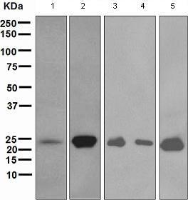 Western blot - Anti-Myosin light chain 3 antibody [EPR4161] (ab108516)