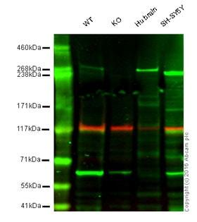 Western blot - Anti-IP3 receptor antibody [EPR4537] (ab108517)