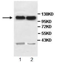 Western blot - Anti-PCDH10 antibody (ab108520)
