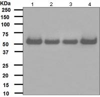 Western blot - Anti-hHR23A antibody [EPR4818] (ab108592)