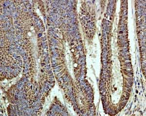 Immunohistochemistry (Formalin/PFA-fixed paraffin-embedded sections) - Anti-EPF antibody [EPR4476] (ab108600)