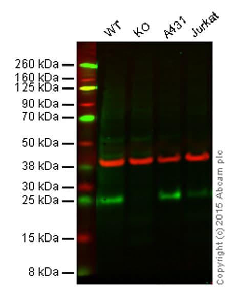 Western blot - Anti-FADD antibody [EPR4415] (ab108601)
