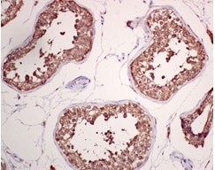 Immunohistochemistry (Formalin/PFA-fixed paraffin-embedded sections) - Anti-GRP78 BiP antibody [EPR4040(2)] (ab108613)