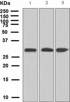 Western blot - Anti-ING4 antibody [EP3804] (ab108621)
