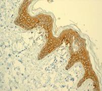 Immunohistochemistry (Formalin/PFA-fixed paraffin-embedded sections) - Anti-Galectin 7 antibody [EPR4287] (ab108623)