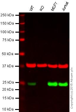 Western blot - Anti-MGMT antibody [EPR4397] (ab108630)