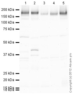 Western blot - Anti-Niemann Pick C1 antibody (ab108921)