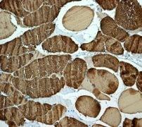 Immunohistochemistry (Formalin/PFA-fixed paraffin-embedded sections) - Anti-Myosin light chain 3 antibody [EPR4160] (ab108923)