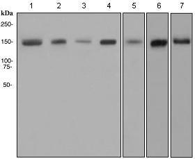 Western blot - FANCD2 antibody [EPR2302] (ab108928)