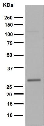 Western blot - Anti-Hes1 antibody [EPR4226] (ab108937)