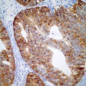 Immunohistochemistry (Formalin/PFA-fixed paraffin-embedded sections) - Anti-GPA33 antibody [EPR4240] (ab108938)
