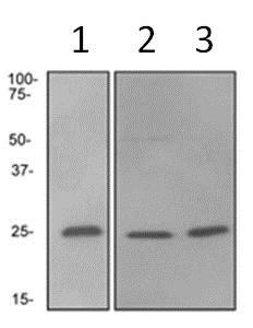 Western blot - Anti-Rab4 antibody [EPR3042] - Early Endosome Marker (ab108974)