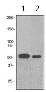 Western blot - Anti-RGS9 antibody [EPR2873] (ab108975)