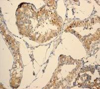 Immunohistochemistry (Formalin/PFA-fixed paraffin-embedded sections) - Anti-PHD1/prolyl hydroxylase antibody [EPR2745] (ab108980)