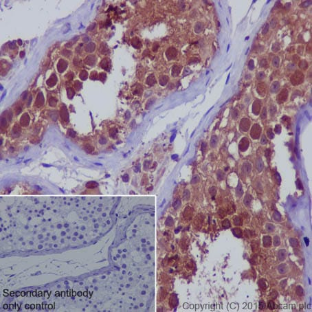 Immunohistochemistry (Formalin/PFA-fixed paraffin-embedded sections) - Anti-SENP1 antibody [EPR3844] (ab108981)
