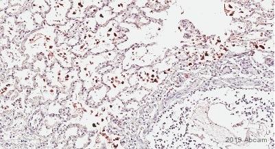 Immunohistochemistry (Formalin/PFA-fixed paraffin-embedded sections) - Anti-PGP9.5 antibody [EPR4118] (ab108986)
