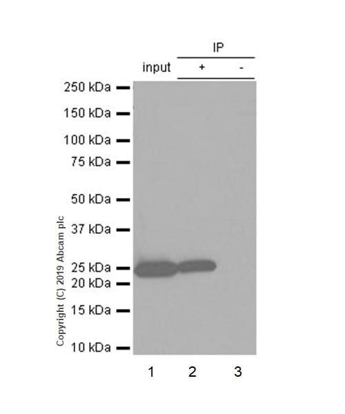 Immunoprecipitation - Anti-PGP9.5 antibody [EPR4118] (ab108986)