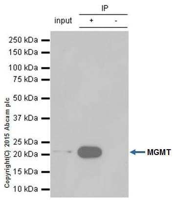 Immunoprecipitation - Anti-MGMT antibody [EPR4398] (ab108989)