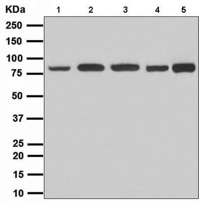 Western blot - Anti-Stromal interaction molecule 1 antibody [EPR3414] (ab108994)