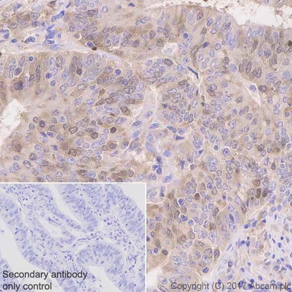 Immunohistochemistry (Formalin/PFA-fixed paraffin-embedded sections) - Anti-Thymidylate Synthase antibody [EPR4545] (ab108995)