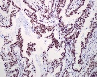 Immunohistochemistry (Formalin/PFA-fixed paraffin-embedded sections) - Anti-RSF1 antibody [EPR3749(2)] (ab109002)