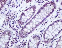 Immunohistochemistry (Formalin/PFA-fixed paraffin-embedded sections) - Anti-UBF1 antibody [EPR2742] (ab109011)