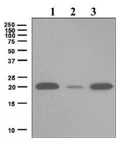 Western blot - Anti-Ferritin Light Chain antibody [EPR5259] (ab109019)