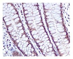 Immunohistochemistry (Formalin/PFA-fixed paraffin-embedded sections) - Anti-HPRT antibody [EPR5299] (ab109021)