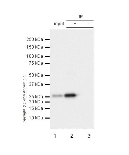 Immunoprecipitation - Anti-HPRT antibody [EPR5299] (ab109021)