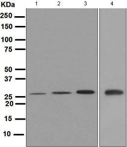 Western blot - Anti-GSC antibody [EPR4847] (ab109024)