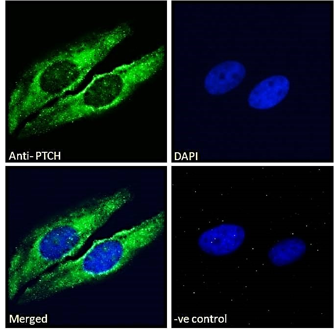 Immunocytochemistry/ Immunofluorescence - Anti-Patched / PTCH1 antibody (ab109096)