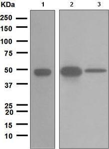 Western blot - Anti-Cytokeratin 20 antibody [EPR1621(2)] (ab109111)